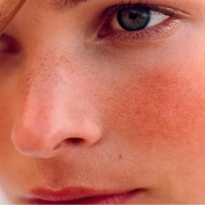 Problemy, z którymi zmagają się dziewczyny – jak sobie z nimi radzić?