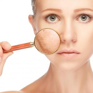 Przebarwienia na twarzy – jak sobie z nimi radzić?